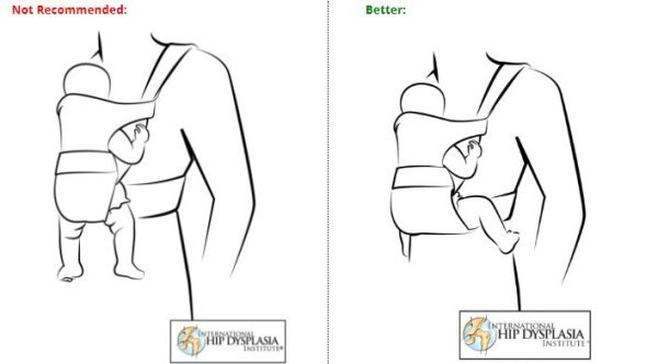 Are baby carriers safe for baby hips?